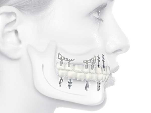 Produzione-impianti-dentali