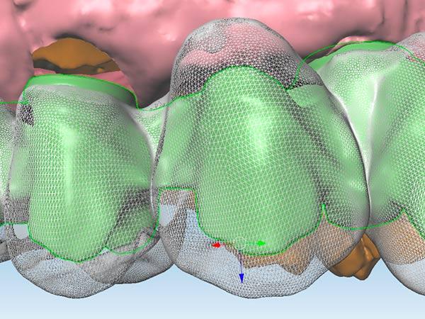 Pianificazione-protesica-digitale-con-sistema-cad-cam